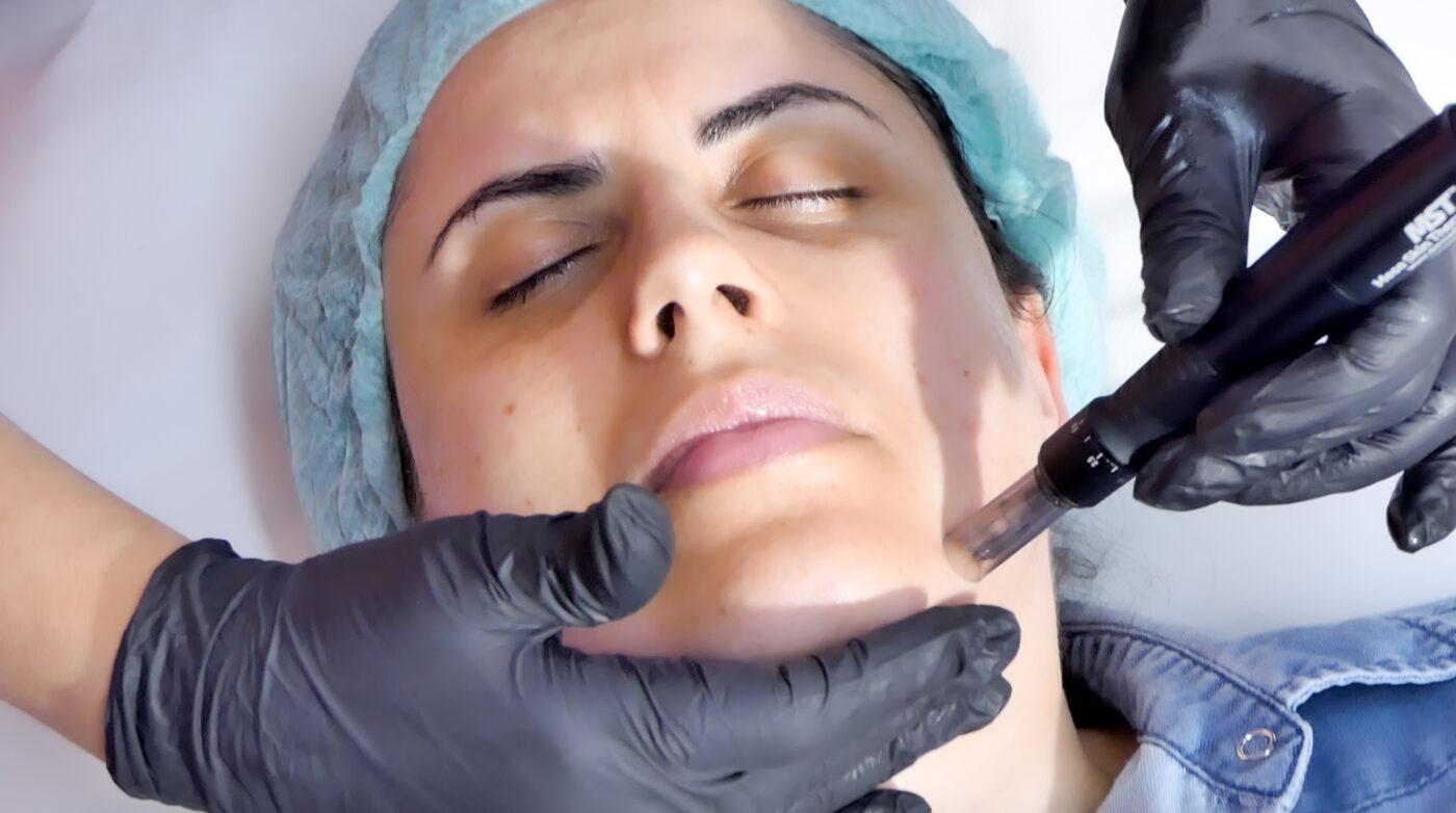 Curs Mezoterapie Online